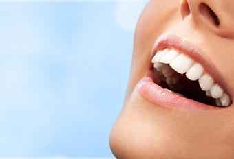 Diseño de sonrisa ¿qué es y en qué ayuda al paciente?
