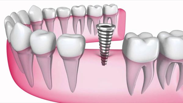 clinica dental alcala de henares