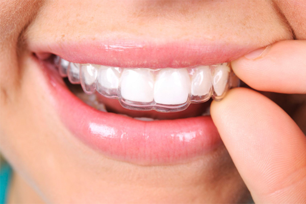 Ortodoncia Invisalign en Argüelles