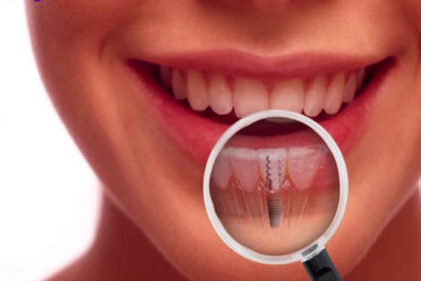 Implantes dentales Alcalá de Henares- Qué son y ventajas